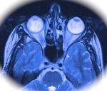 eyes in a skull MRI